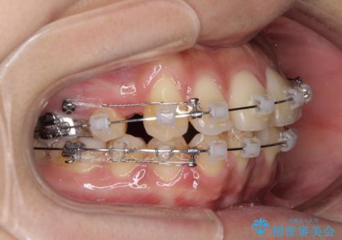 横顔をすっきりさせたい 下の前歯が1本少ない方の変則的な抜歯矯正の治療中