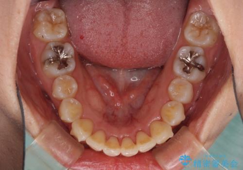 インビザラインで機能面に問題のある歯列を改善の治療中
