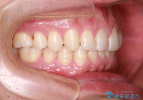 下の前歯のがたがたを治したい。インビザラインライトの治療後
