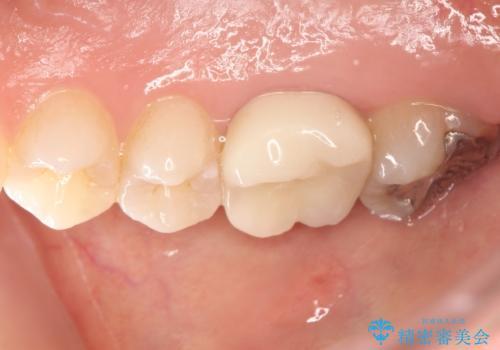 歯茎がはれてきた 根の治療をしてからのセラミック装着の治療後