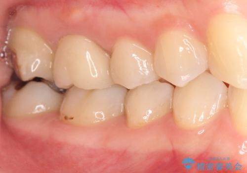 歯茎がはれてきた 根の治療をしてからのセラミック装着の症例 治療後