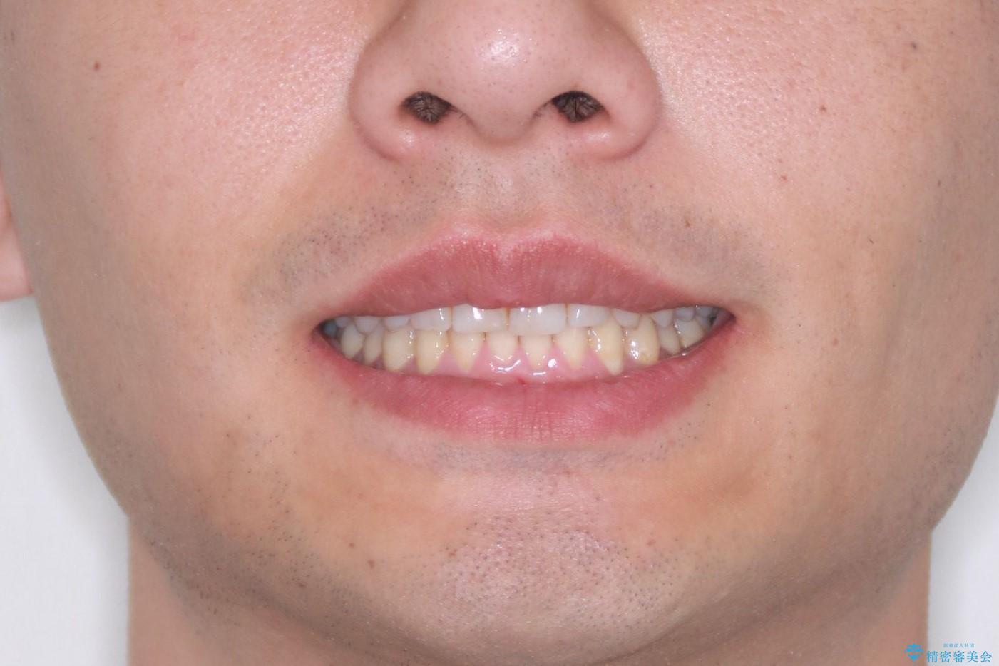 下の前歯のがたがたを治したい。インビザラインライトの治療後(顔貌)