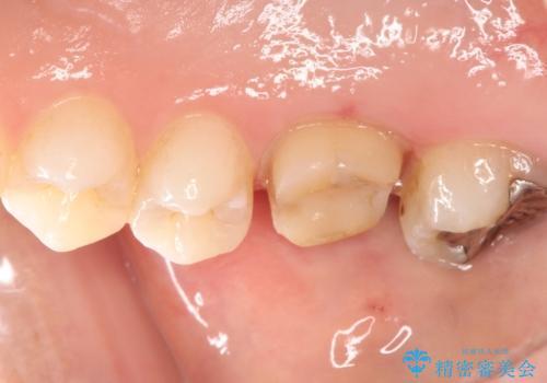 歯茎がはれてきた 根の治療をしてからのセラミック装着の治療中