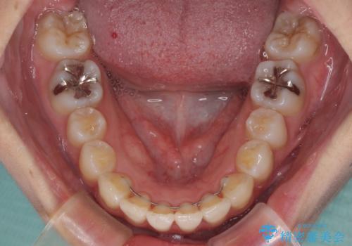 インビザラインで機能面に問題のある歯列を改善の治療後