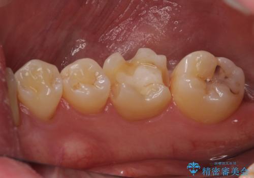 セラミックインレーやりかえ 虫歯の除去をしっかりとの治療中