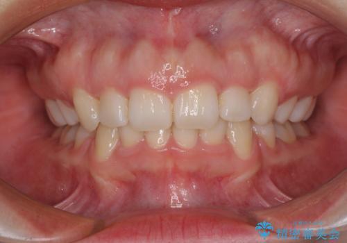 目立たない裏側矯正 抜歯矯正で口元を改善の症例 治療後