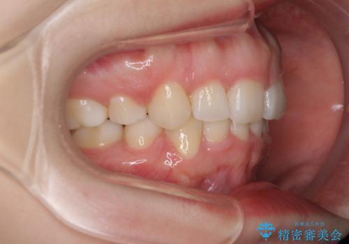 目立たない裏側矯正 抜歯矯正で口元を改善の治療後