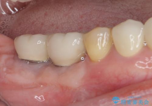磨きにくい奥歯のインプラント周り 歯肉移植(FGG)による角化歯肉の獲得 の治療後