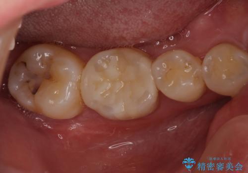 セラミックインレーやりかえ 虫歯の除去をしっかりとの治療後