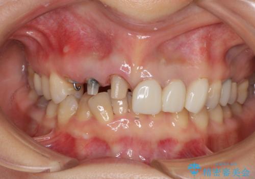 深い虫歯と不自然な色調の前歯 オールセラミッククラウンで自然にの治療中