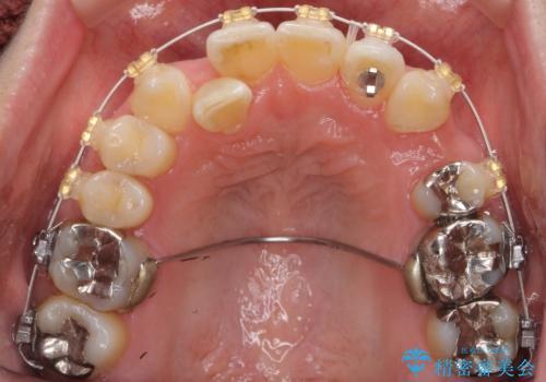 40代の矯正 八重歯を綺麗に の治療中