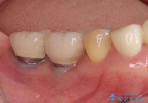 磨きにくい奥歯のインプラント周り 歯肉移植(FGG)による角化歯肉の獲得 の治療前