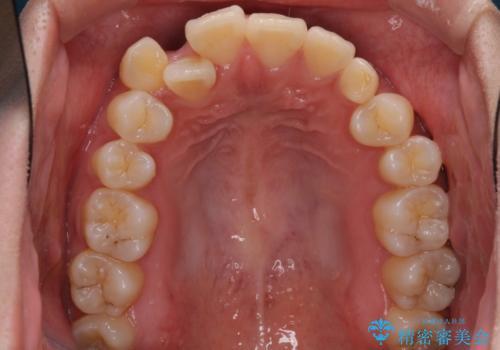 インビザライン矯正とインプラント治療と 総合歯科治療の治療前