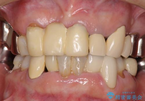 着色が著しい前歯のブリッジをオールセラミックできれいにの治療前