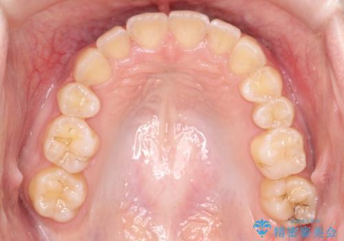 ワイヤーによる抜歯矯正 全体的なガタガタを整った歯並びへの治療後