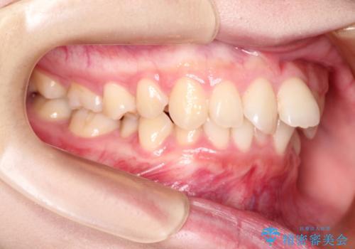 ワイヤーによる抜歯矯正 全体的なガタガタを整った歯並びへの治療前