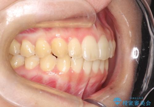出ている前歯をインビザラインにて引っ込めるの治療後