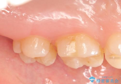 セラミックインレー 銀歯の下の縁下カリエス(歯茎より深い虫歯)の治療の治療前