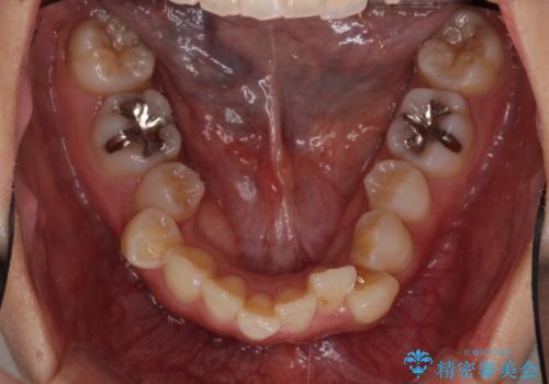 インビザラインで機能面に問題のある歯列を改善の治療前