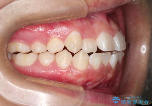 前歯のガタガタを目立たずきれいにしたい インビザラインによる見えない矯正の治療中
