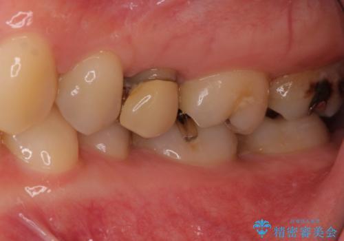 大きな虫歯で歯が欠けた 神経を極力残した治療の治療前