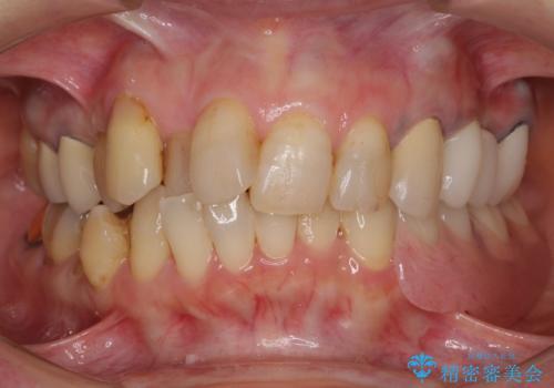 ノンクラスプデンチャーで左側の咬合回復の治療後
