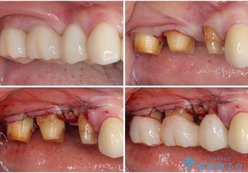 奥歯の歯槽骨が失われた 歯周外科処置後のセラミックブリッジの治療中