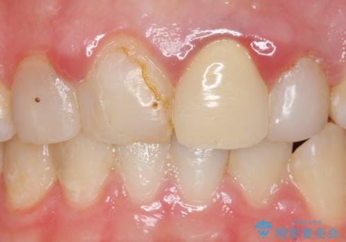 オールセラミッククラウン 前歯を綺麗に 神経が死んだ歯の再治療~補綴の治療前