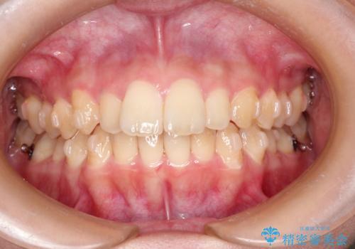 出ている前歯をインビザラインにて引っ込めるの治療中