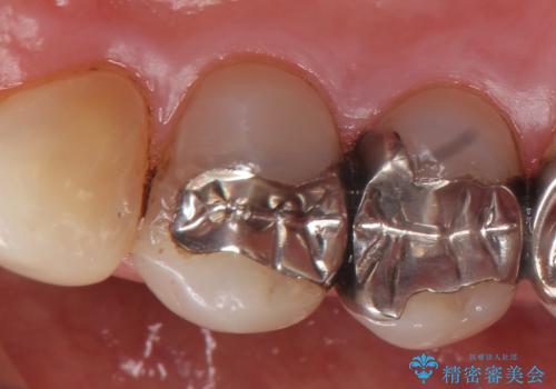オールセラミッククラウン(エクセレント) 神経まで達してしまった虫歯の治療の治療前