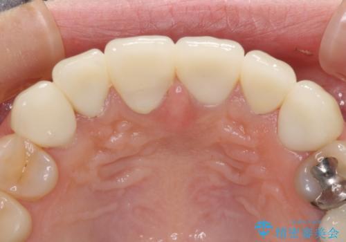 深い虫歯と不自然な色調の前歯 オールセラミッククラウンで自然にの治療後