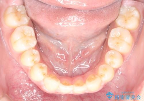 横顔をすっきりさせたい 下の前歯が1本少ない方の変則的な抜歯矯正の治療後