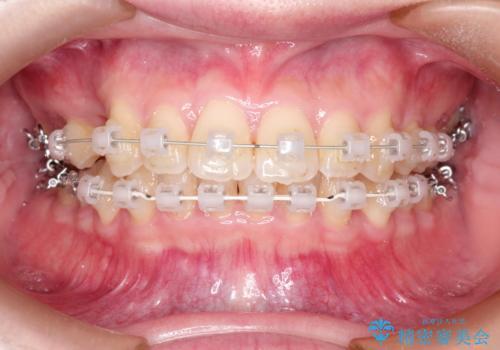 ワイヤーによる抜歯矯正 全体的なガタガタを整った歯並びへの治療中
