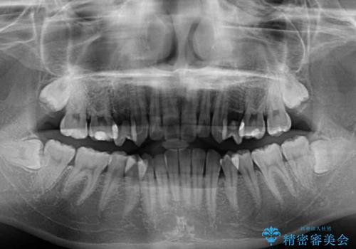 奥歯の反対咬合 上顎骨を拡大してインビザラインで矯正の治療前