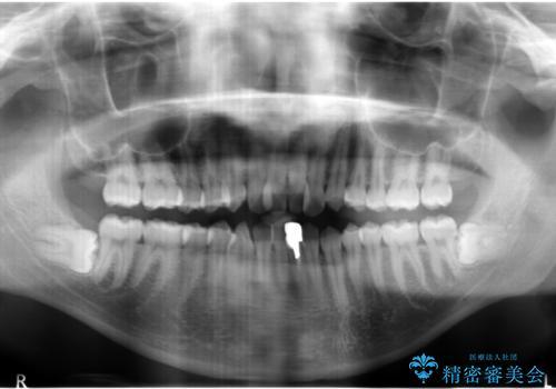 インビザライン矯正 神経のない歯をとって、全て天然歯に の治療前