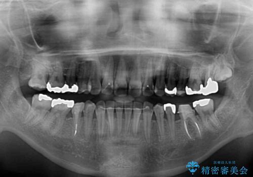 上顎骨拡大を併用したインビザライン矯正の治療後