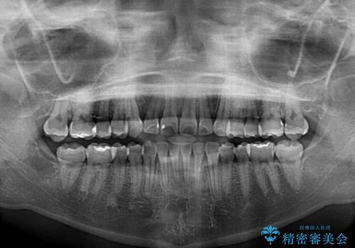 埋もれた八重歯を引っ張り出す 目立たない矯正装置の治療後