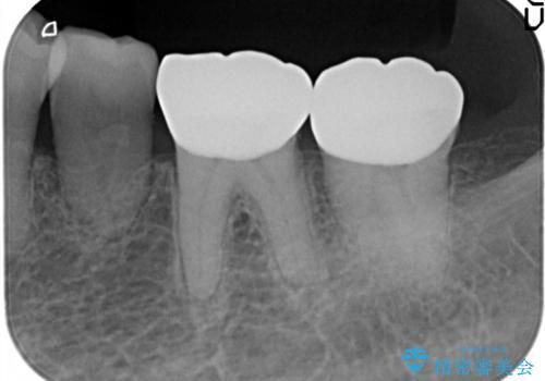 奥歯の被せ物をしたい。しみる奥歯、アイスを食べたい。の治療後