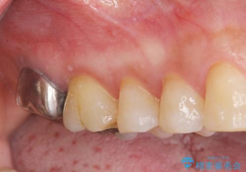 歯髄方向 歯肉方向へと深い 2種類の大きな虫歯の症例 治療前