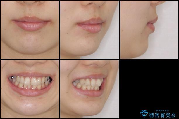 上顎骨拡大を併用したインビザライン矯正の治療前(顔貌)