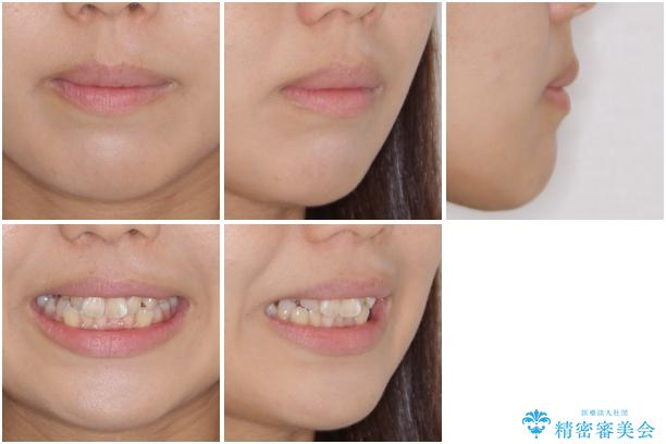 埋もれた八重歯を引っ張り出す 目立たない矯正装置の治療前(顔貌)