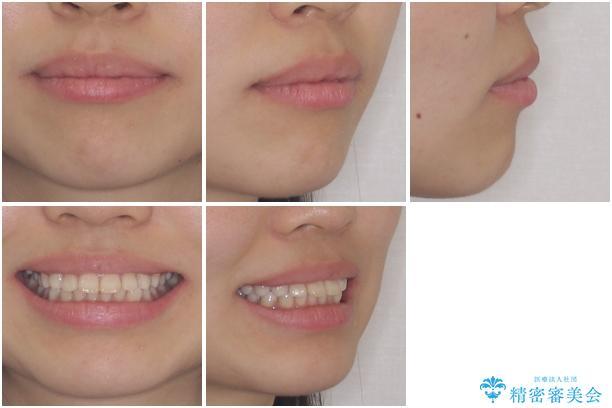 インビザラインによる軽度な出っ歯の矯正治療の治療前(顔貌)