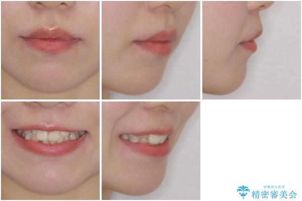 インビザライン矯正とインプラント治療と 総合歯科治療の治療前(顔貌)