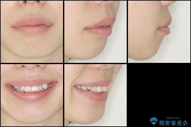 目立たない裏側矯正 抜歯矯正で口元を改善の治療前(顔貌)