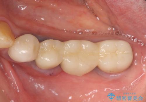 ブリッジ支台の歯の痛み インプラントによる咬合負担の治療前