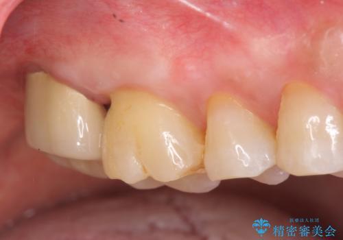 歯髄方向 歯肉方向へと深い 2種類の大きな虫歯の症例 治療後