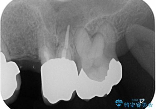 ノンクラスプデンチャーで左側の咬合回復の治療前