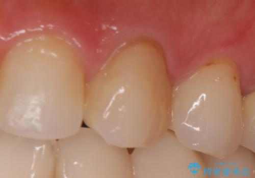 オールセラミッククラウン(スペシャル) より綺麗な歯への症例 治療前