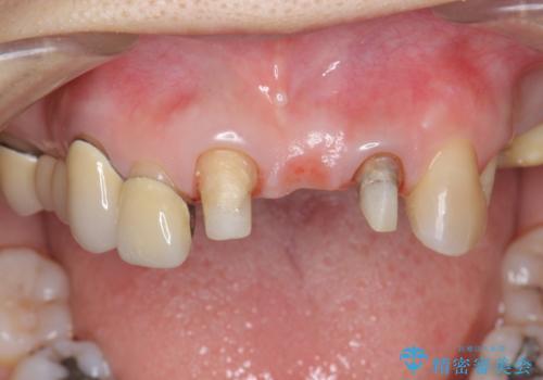 前歯ブリッジのやりかえの治療中