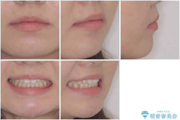 矯正治療とインプラント治療を同時に 総合歯科診療の治療後(顔貌)